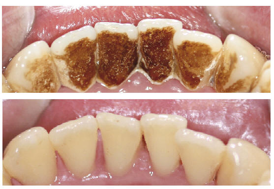 staining teeth